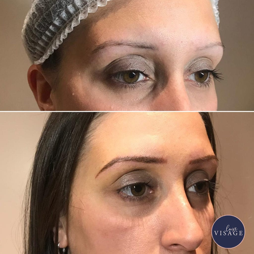 luxe_visage nanoblading before and after