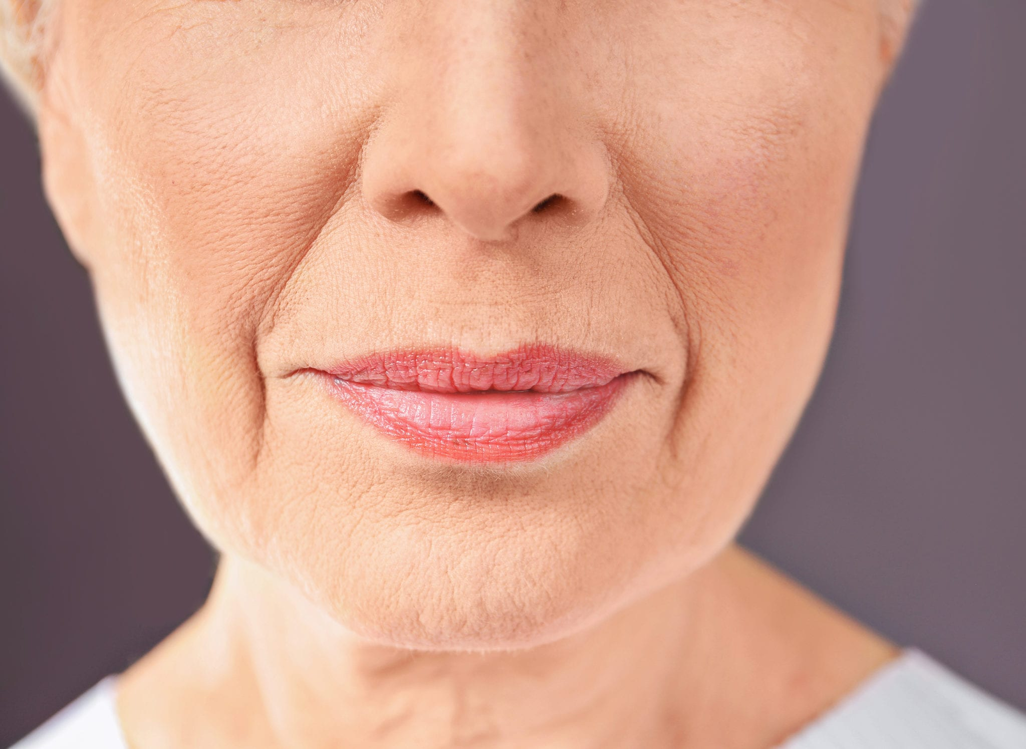 dermal fillers used to help Anti-wrinkle Fillers (Nasolabial Folds)