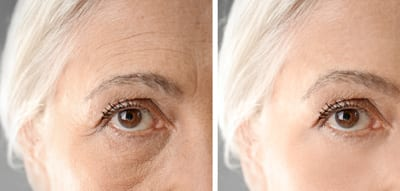 dermal fillers used on crows feet